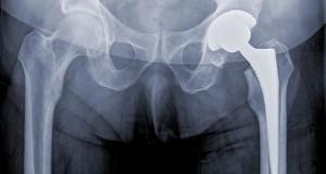 Иновативен гел ще помага на организма да адаптира костните импланти